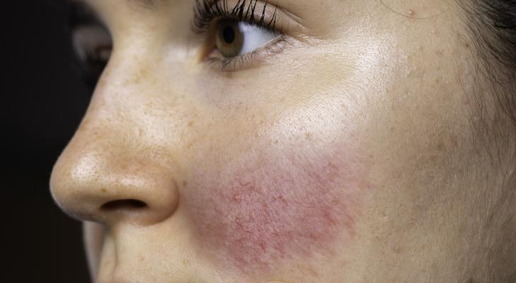 banner of Many People With Rosacea Dislike the Appearance Of Their Skin