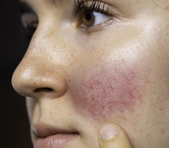 square of Many People With Rosacea Dislike the Appearance Of Their Skin